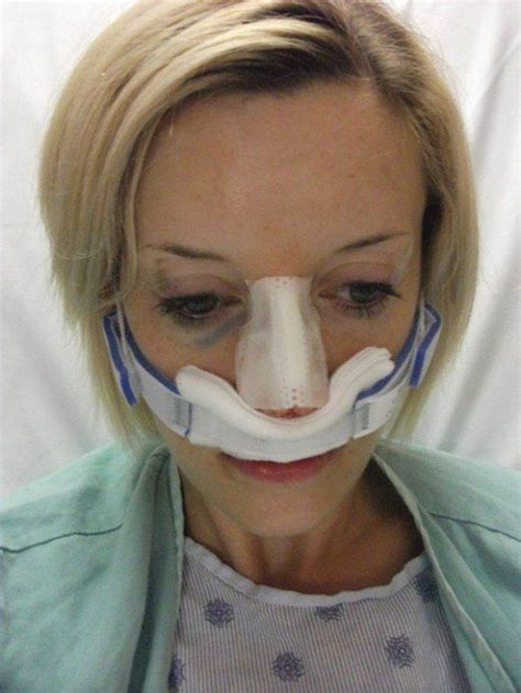 My experience with Septoplasty surgery   Sinus surgery